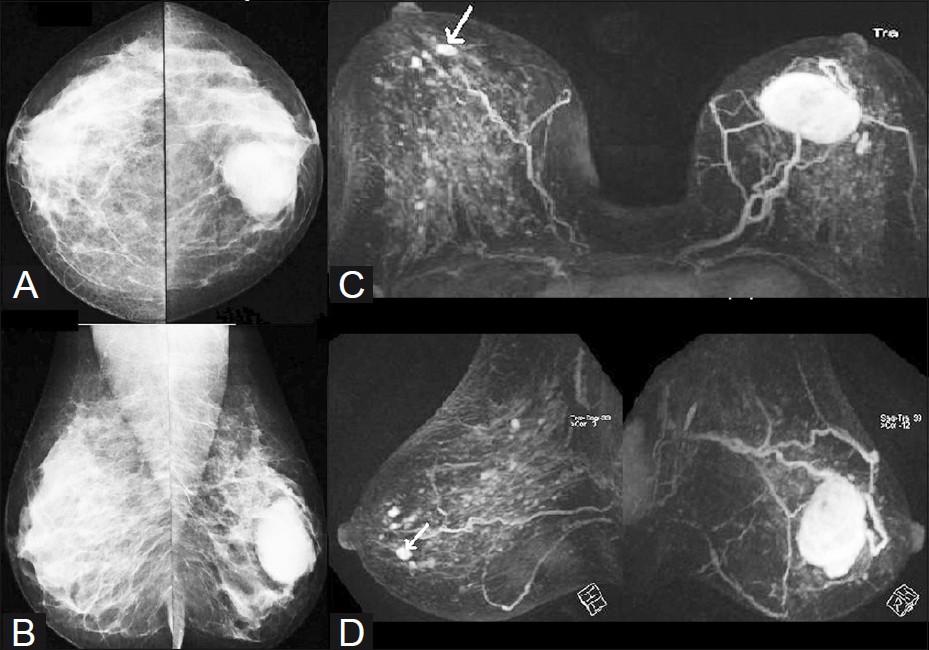 تقنية جديدة للأشعة السينية يمكن أن تحسن اكتشاف القنابل وعلاج سرطان الثدي